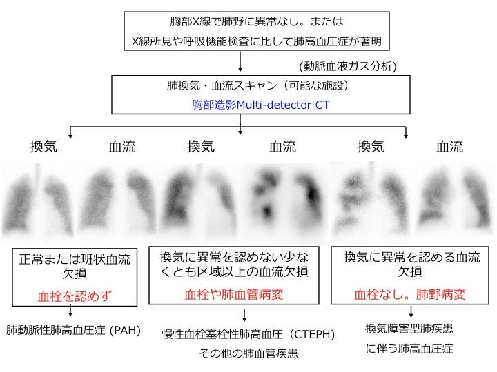図1. 原因不明の肺高血圧症に対するアプローチとCTEPHの位置付け